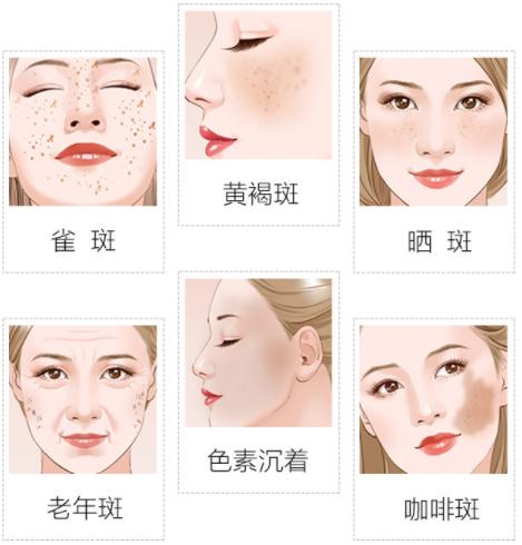 女人脸上长斑是什么原因