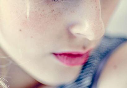 激光祛除雀斑对皮肤有害吗