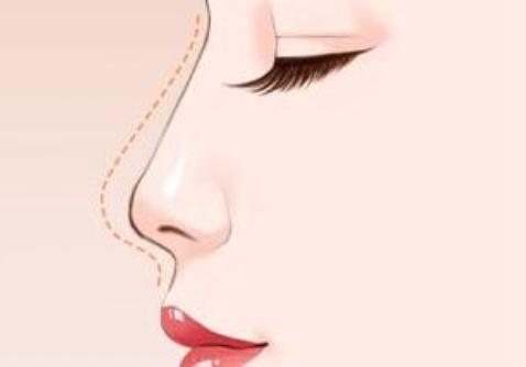 假体隆鼻手术到底安不安全