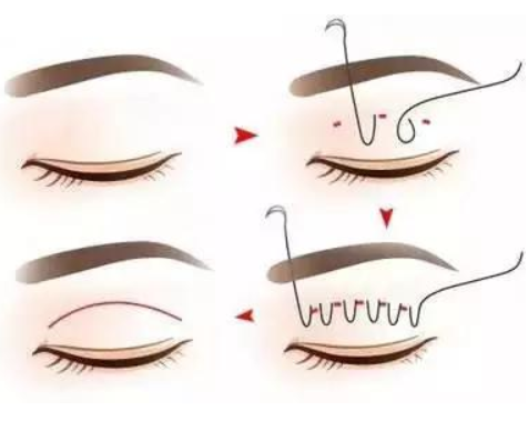 上眼皮脂肪厚可以做埋线双眼皮吗