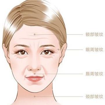 怎么去除脸部皱纹