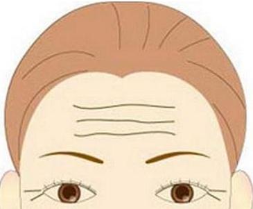 激光祛抬头纹能保持多久