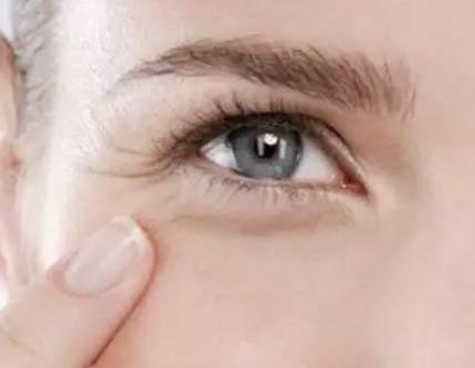 怎么去眼角皱纹比较快
