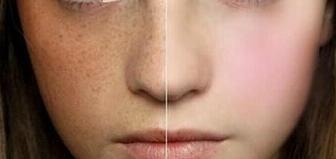 激光祛斑后可以戴口罩吗