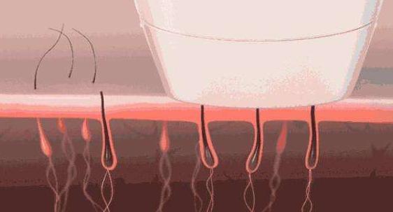 激光脱毛要做几个疗程才有效果