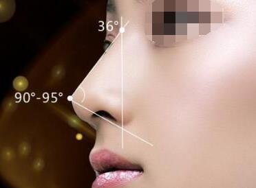 怎样拥有高挺的鼻子