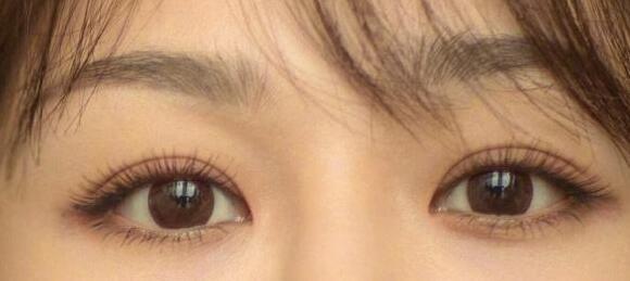 双眼皮疤痕凹陷能修复吗