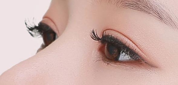上眼皮脂肪厚且松弛适合什么双眼皮手术