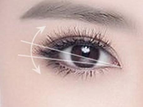 开眼角手术多少天能拆线